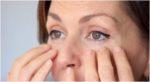 Как избавиться от мешков под глазами
